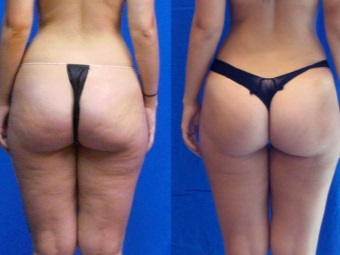 Sharko shower : before and after photos - cellulite on the pope