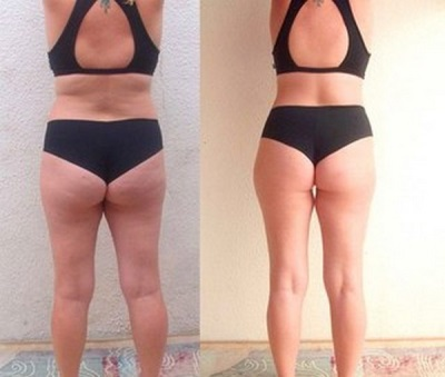 Sharko shower for slimming, anti-cellulite - Photo : Before and After