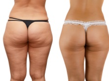Sharko shower - cellulite before and after